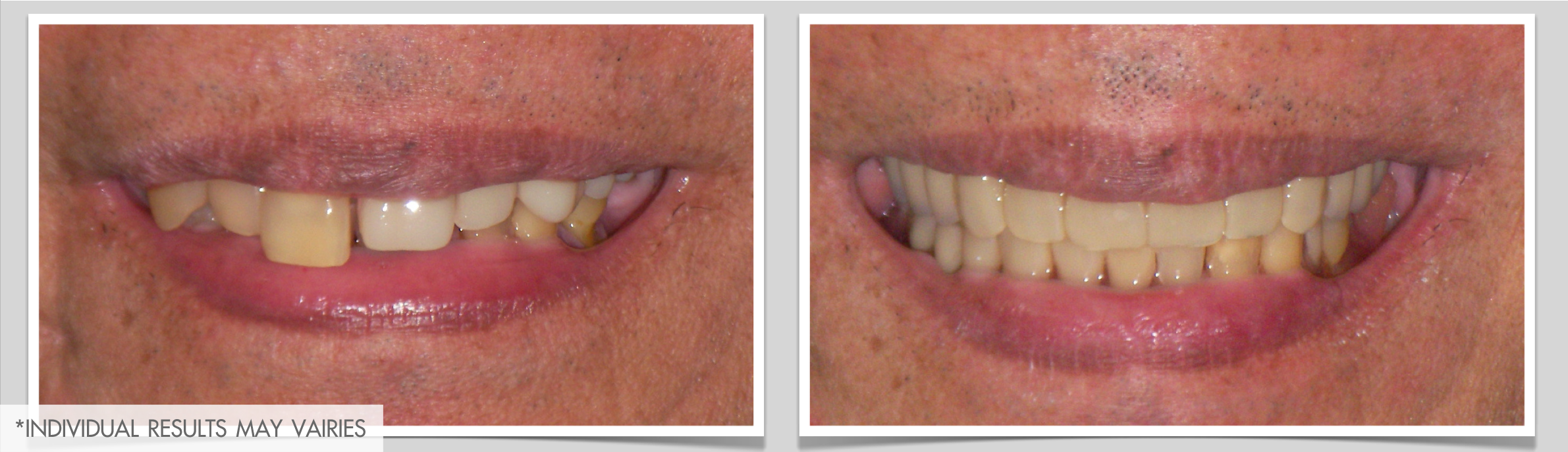 dental removable prothesis Advantages of using dental implants with removable dentures marielaina perrone dds henderson dentist 702-458-2929.